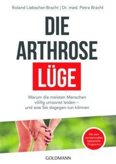 Die-Arthrose-Lüge